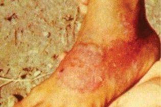 Bolhas e lesões avermelhadas nos pés