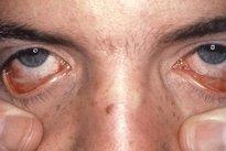 Sintomas de eritema multiforme