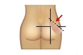 Como aplicar uma injeção intramuscular corretamente