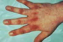 Dedos das mãos finos