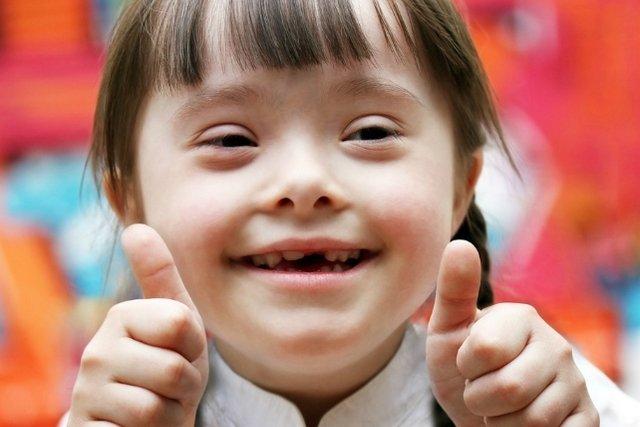 Principais características da síndrome de Down