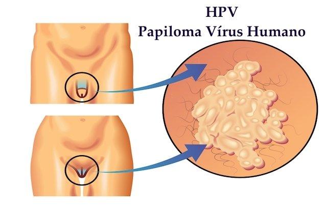 HPV: cura, transmissão, sintomas e tratamento