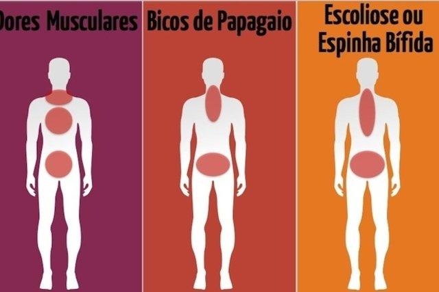 Possíveis causas da dor nas costas