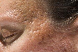 Saiba qual é o melhor tratamento para cada tipo de acne