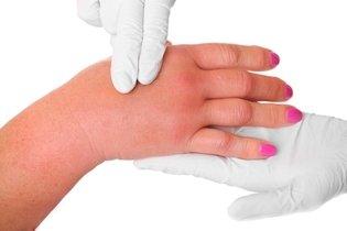 Inchaço das mãos: sintoma de esclerodermia localizada