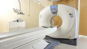 Tomografía Computarizada: Qué es, para qué sirve, ventajas y desventajas