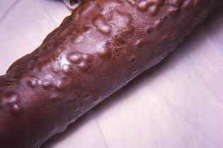 Sintomas de Varíola