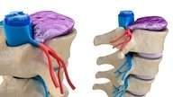 Sintomas de hérnia de disco lombar, cervical e toracica e como prevenir
