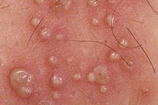 Lesões na pele