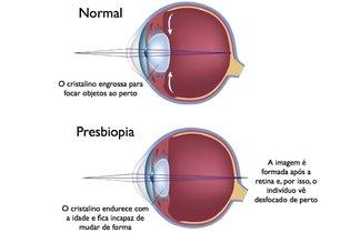 Sintomas de presbiopia