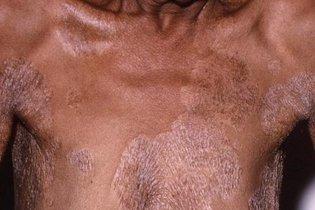 Eritrasma: o que é e principais sintomas