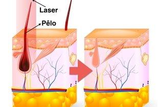 Como funciona a depilação a laser