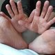 Hand, foot and mouth disease: what are the main symptoms