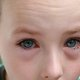 How to Identify and Treat Conjunctivitis in Babies