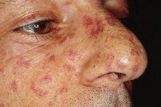 Manchas vermelhas no rosto: sintoma de esclerodermia sistêmica