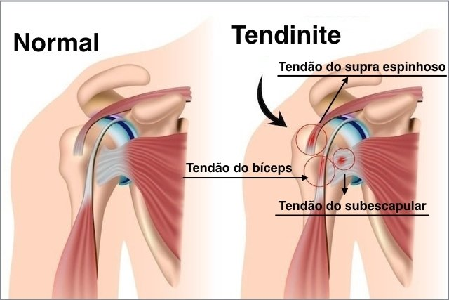 Tendinite ombro tem cura