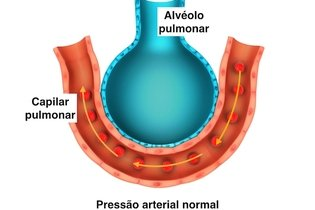 Alvéolo pulmonar normal