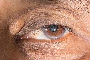 Xantelasma no olho