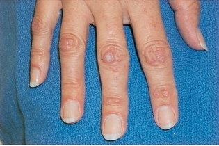 O que é dermatomiosite e como tratar