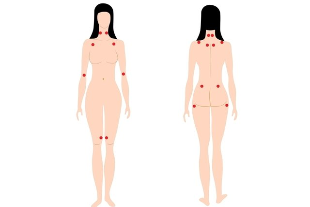 Pontos dolorosos da fibromialgia