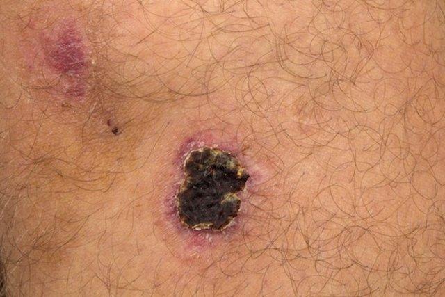 cancer de piele pe obraz