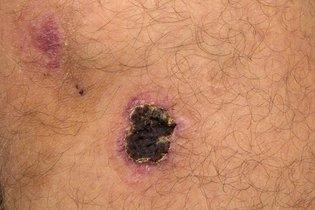 Melanoma maligno com casca