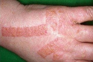 Que remedio es bueno para la dermatitis en las manos