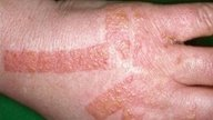 Sintomas e tratamento para Alergia nas Mãos