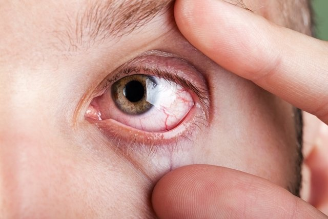 Sintomas de problemas de vista