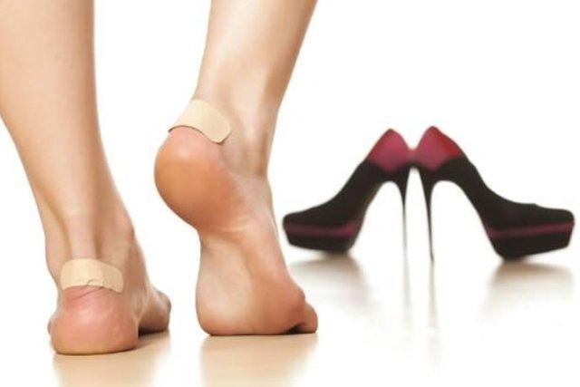Remédio caseiro para bolhas nos pés