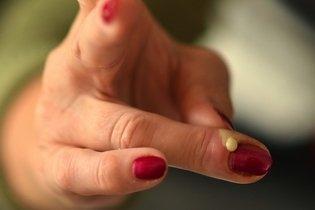 Como é feito o tratamento da paroníquia, principais causas e sintomas