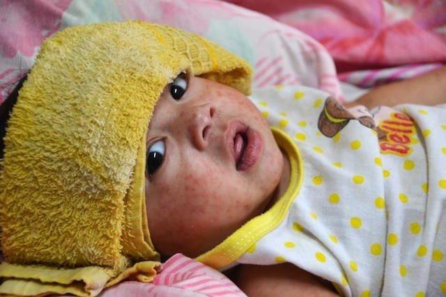 Sintomas e Tratamento do Sarampo no Bebê