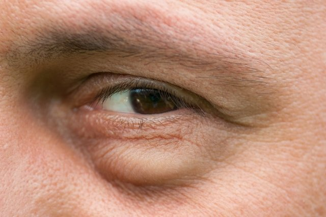Doenças de coração círculos escuros abaixo de olhos