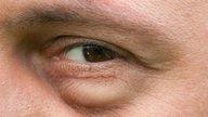 Qué puede causar hinchazón en los ojos