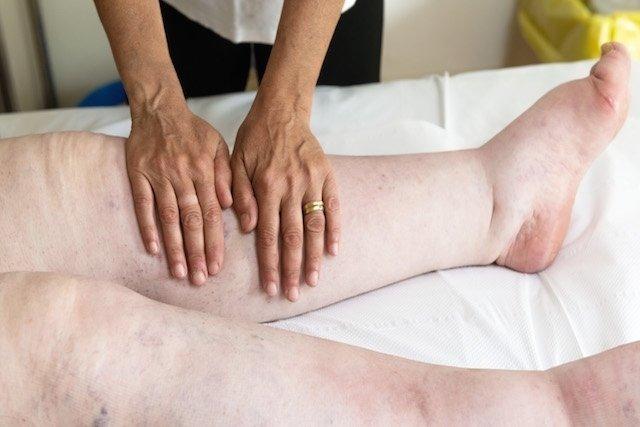 Sintomas de insuficiência renal aguda