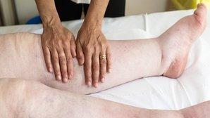Sintomas de Insuficiência Renal Aguda e como identificar