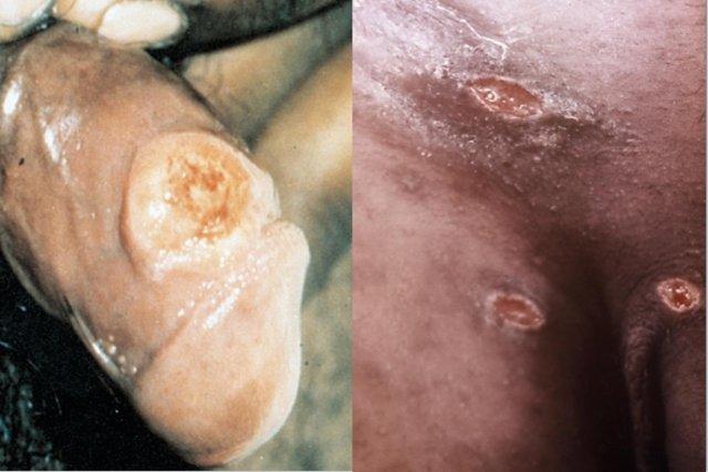 Fotos da sífilis primária