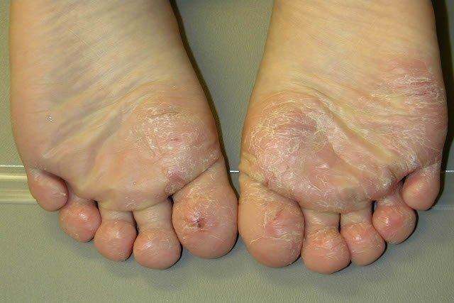 O que é Dermatose e Principais Tipos