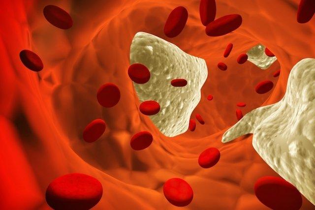5 principais doenças cardíacas no idoso