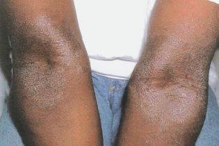 1. Dermatite atópica
