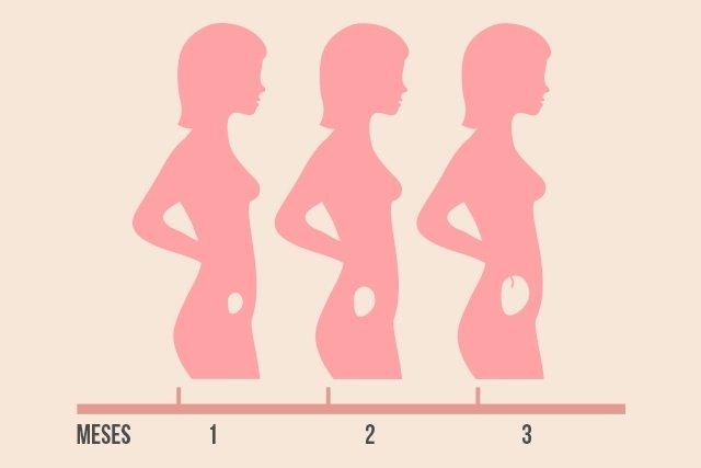 O que é a gravidez anembrionária