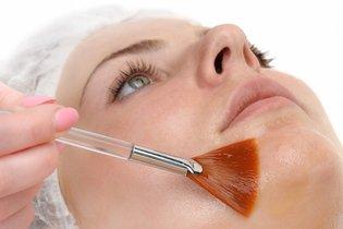 Tratamento com ácido mandélico para cicatriz de Acne