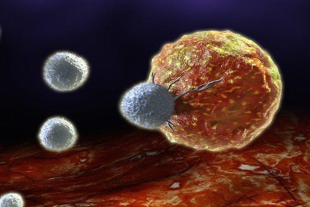 Opções de tratamento para Câncer de Próstata