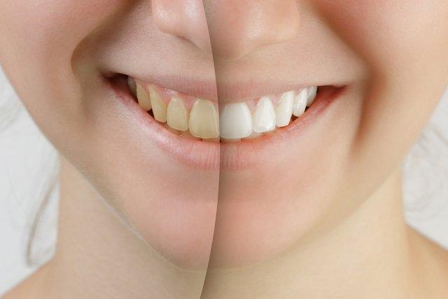 Solução caseira para clarear os dentes