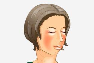 Inflamación del rostro