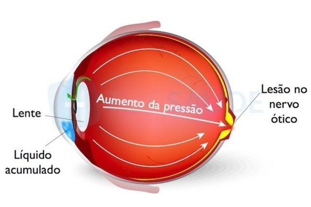 Olho com aumento da pressão ocular