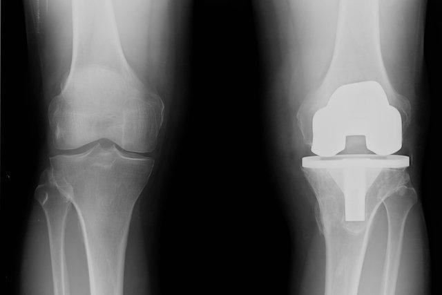 Como é a cirurgia da prótese de joelho