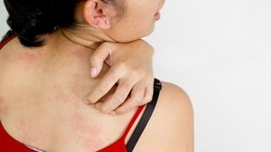 How to identify and treat a skin allergy