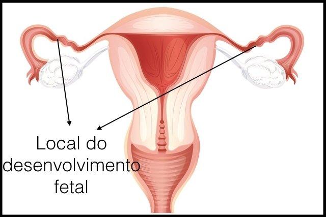 95% das vezes a gravidez ectópica acontece na trompa