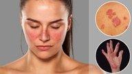 Lupus - Qué es, Síntomas y diagnóstico